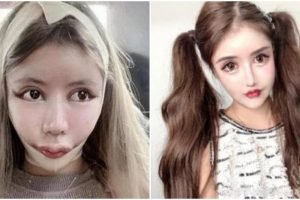 15-Year-Old Influencer Looks Like a Doll after 100+ Surgeries